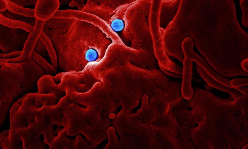 Maladies auto-immunes : de quoi s'agit-il ? ©CDC