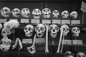 L'ostéoporose chez les cœliaques, aïe aïe aïe ! ©Waiam Cia